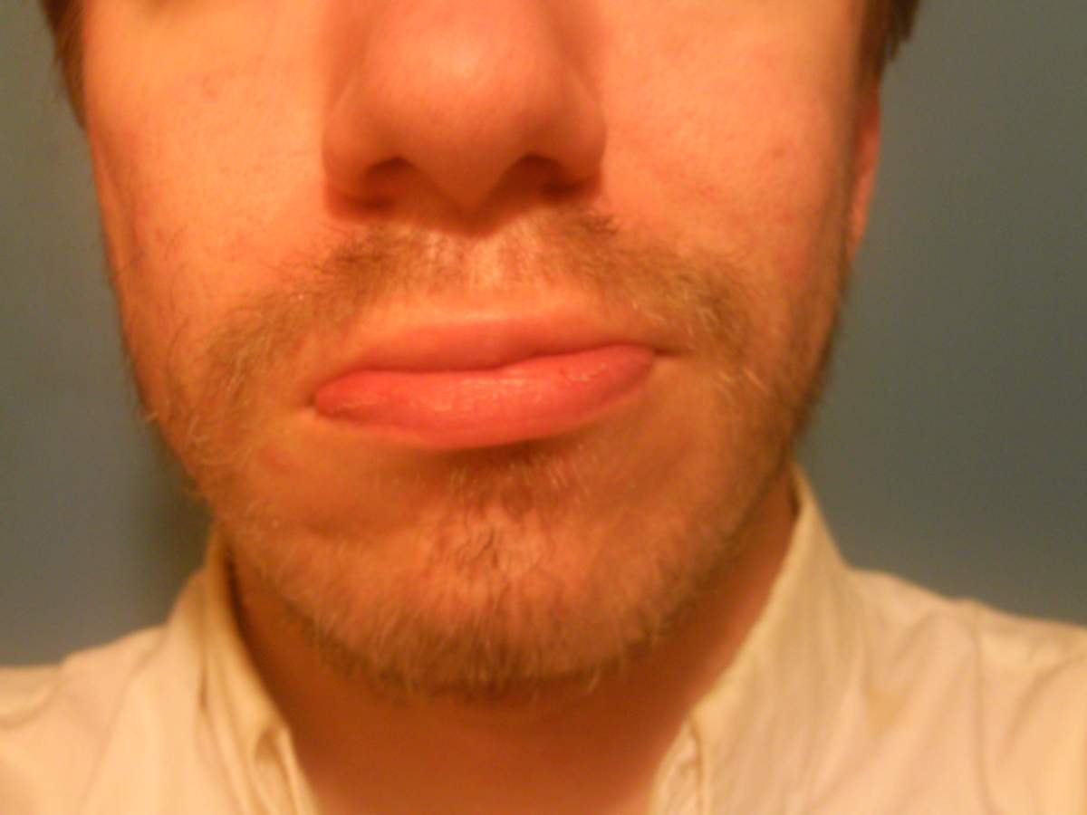 Beard Trouble